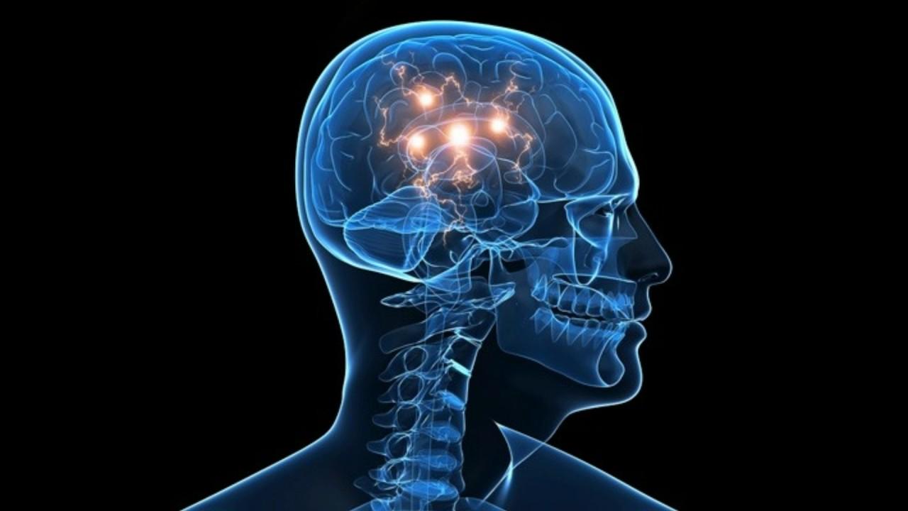 cervello-cannibale