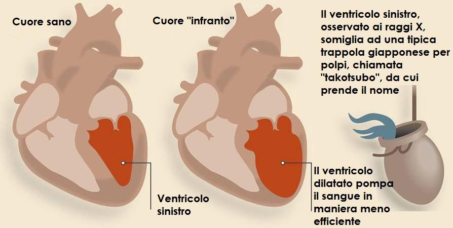 sindrome-da-cuore-infranto