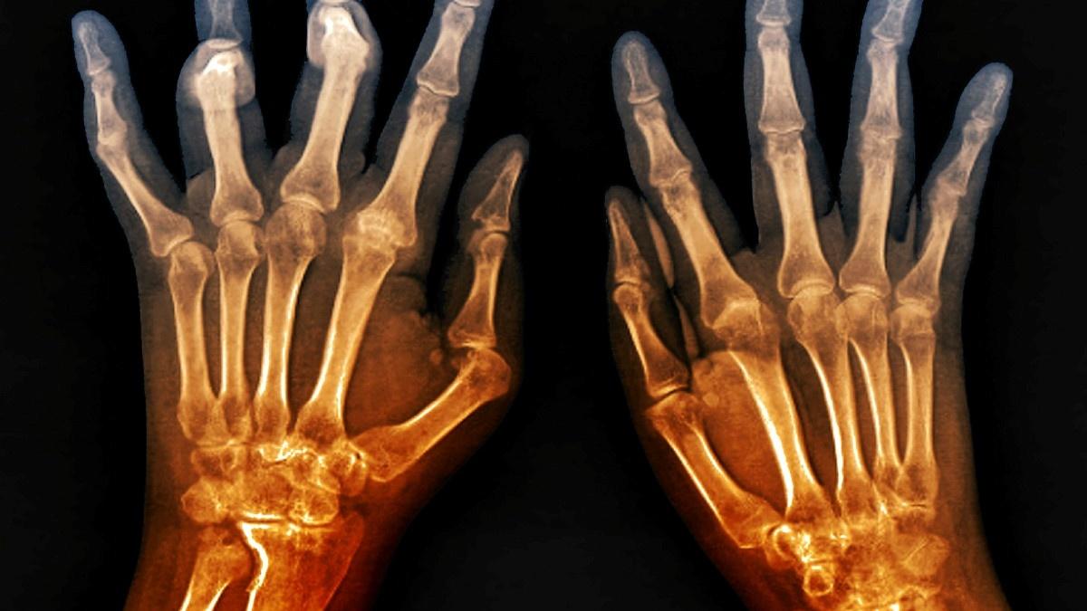artrite-gli-8-cibi-da-evitare