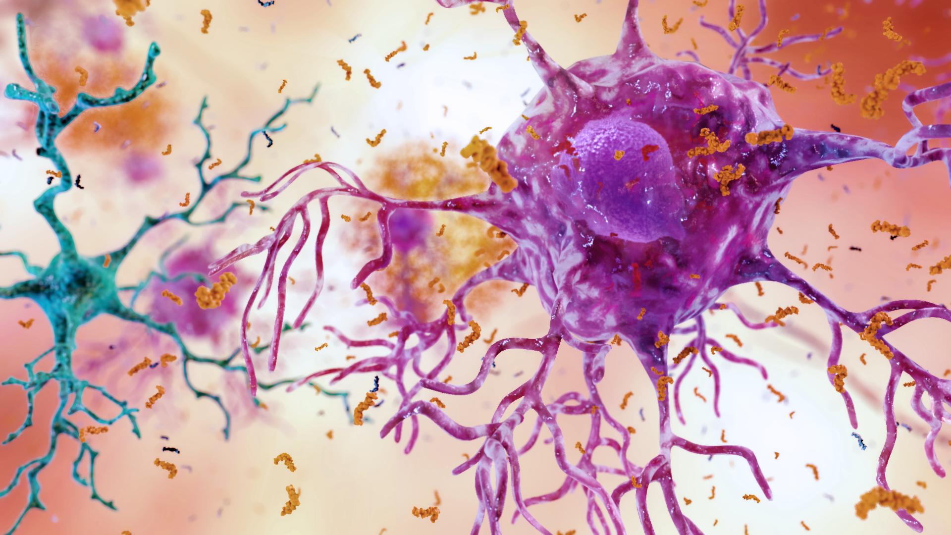 batterio-causa-dellalzheimer