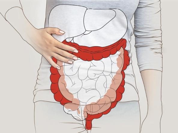 intestino-irritabile