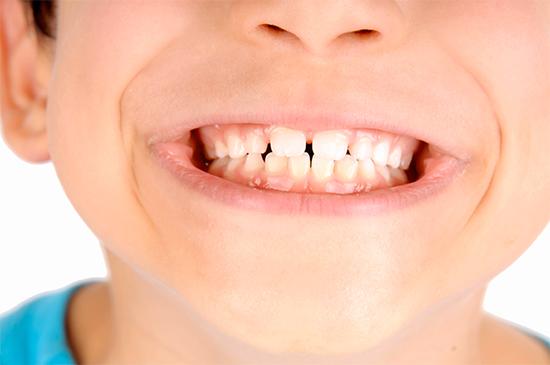 denti-da-latte-cura