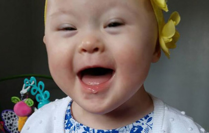 https://app.asana.com/0/32923395333443/631324302794503/f Grace Rosian, 2, has down syndrome and beat cancer twice.  Credit: Courtesy Valerie Rosian