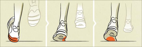 che-cose-la-pronazione-del-piede